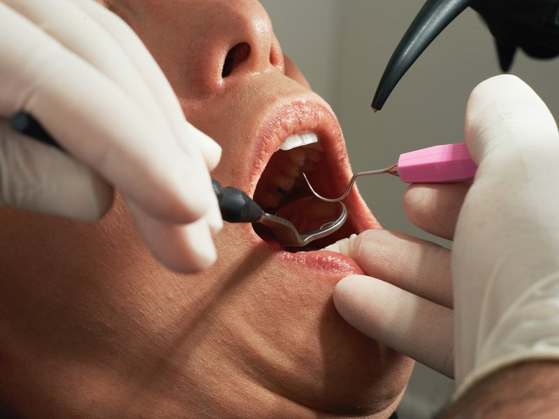 Filling the Gap! Unaffordable Dental and the impact in the Veteran Community!