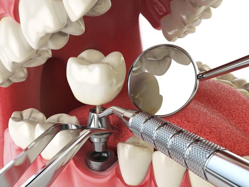 שתלים (השתלות שיניים)