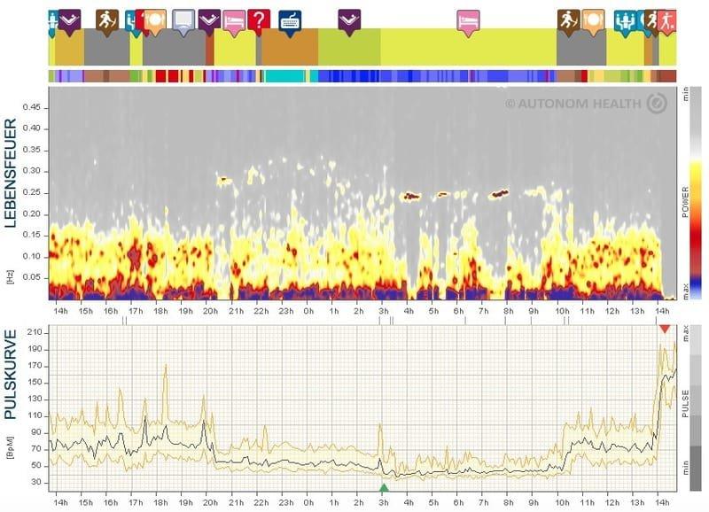 HRV-Analysen: für gesunde, einsatzbereite Mitarbeitende