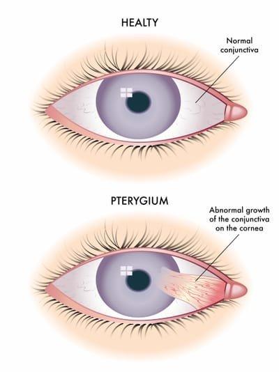 Pterygium Surgery