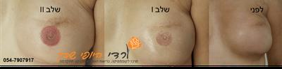 מיקרו-פיגמנטציה (איפור קבוע)